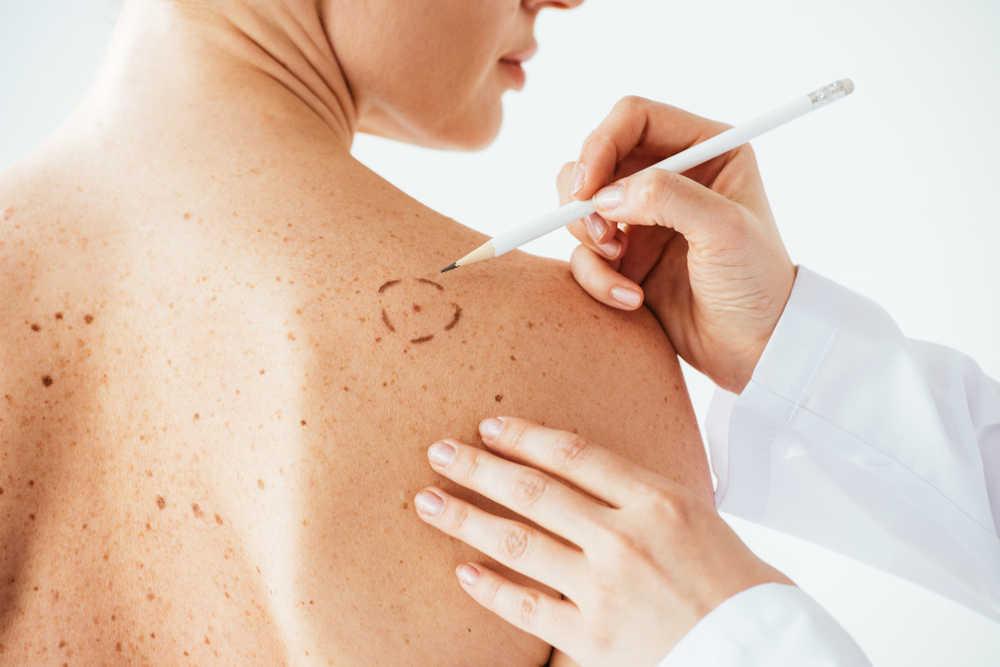 Hablemos sobre el melanoma y cómo prevenirlo